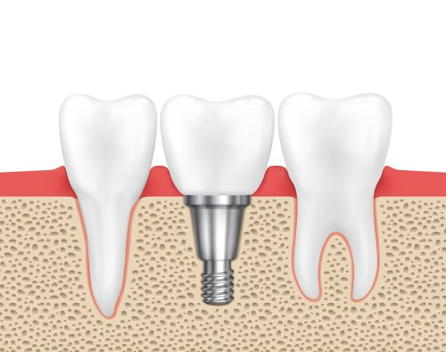 dental - implants